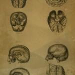 Piedra Litográfica para el Atlas de Anatomía de 1890- Barcelona