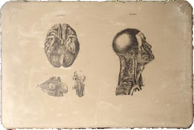 estampacion piedra litografica